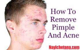 Remove Pimples and Acne Remove Pimples and Acne