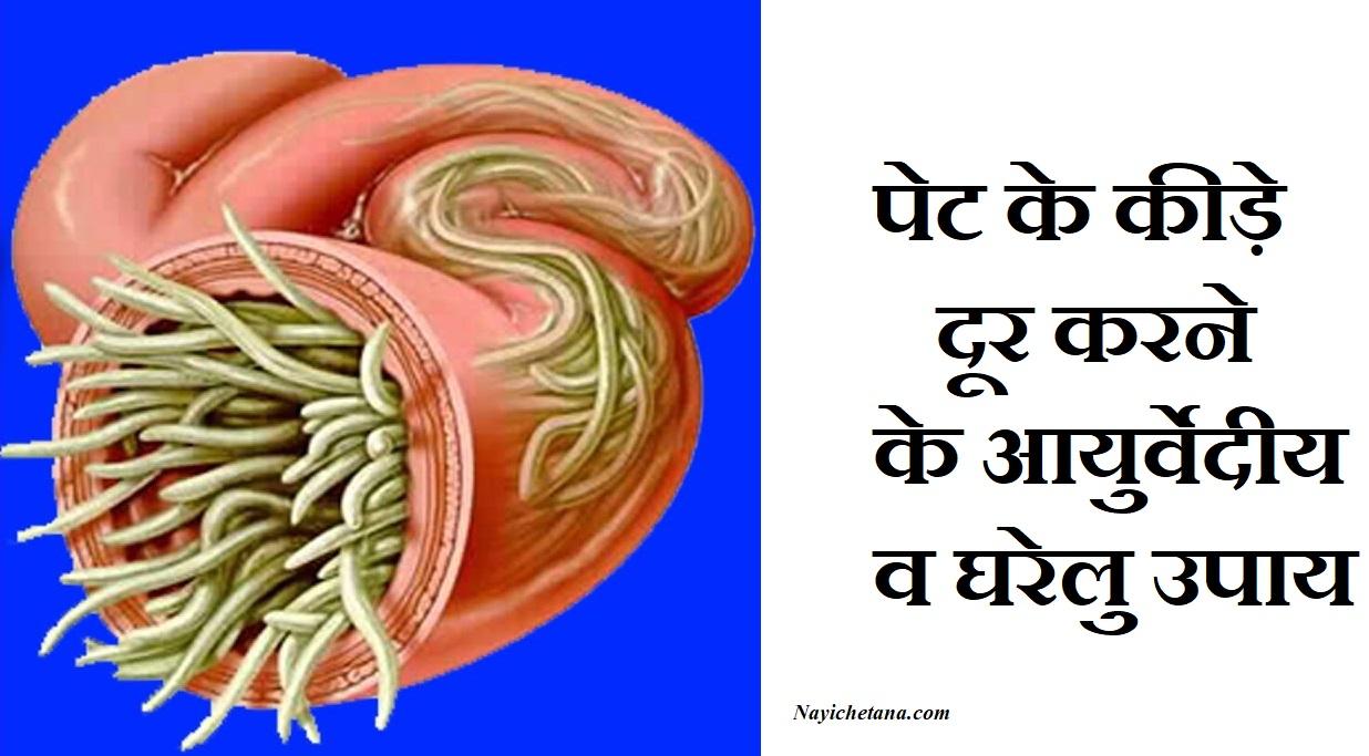 पेट के कीड़े दूर करने के आयुर्वेदीय व घरेलु उपाय, Stomach Bacteria Causes Treatment In Hindi, Pet ke kide, pet ke kide kaise door kare, Pet ke kide ko kaise kare door