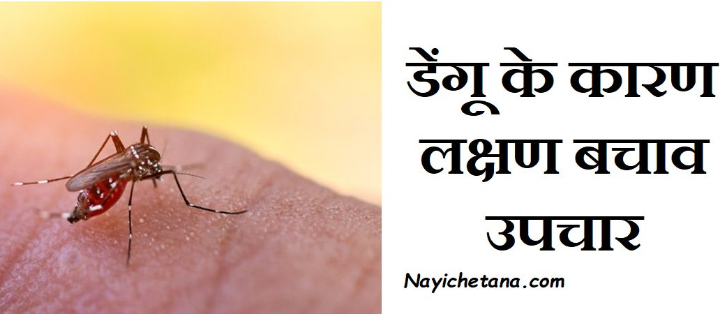 डेंगू के कारण लक्षण बचाव  उपचार, Dengue Fever Symptoms Causes Treatment In Hindi, Dengue bhukhar ke laksahn,Dengu se bachav,Nayichetana.com, dengu ka ilaj