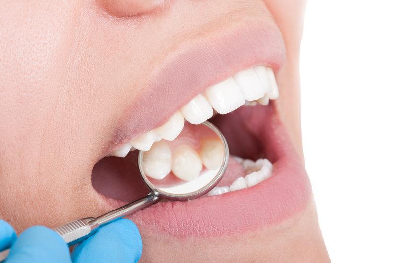 teeth, दाँतों की सड़न लक्षण उपचार तरीके,Cavities Dental Caries Causes Symptoms Treatment In Hindi,Nayichetana.com,daanto ki sadan thik kare,teeth care in hindi