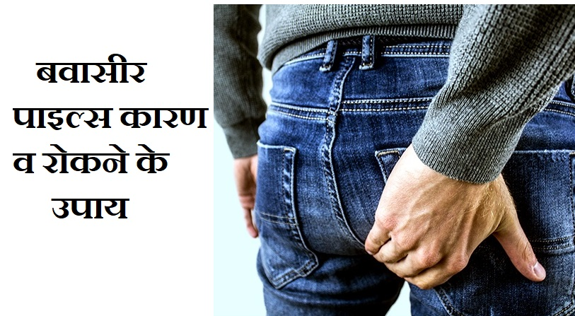 बवासीर पाइल्स कारण व रोकने के उपाय,Bawaseer Piles Symptoms Causes Treatment In Hindi,Bawaseer ke nuksan,Piles upay in hindi,bawaseer ke upay,nayichetana.com