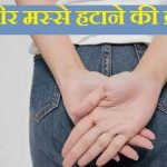बवासीर मस्से हटाने की क्रीम,Piles Hemorrhoid removal cream in hindi,Piles hatane ki cream,bavasir masse htane ke cream,piles patanjali ki dawa